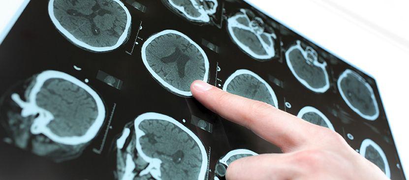 Neurolog - Strefa Zdrowia